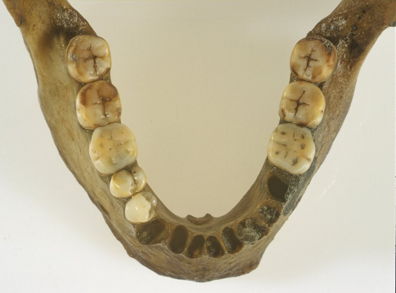 Detail of the jawbone from the human bone assemblage found among the collapsed stern. Note how the surfaces of the molars are ground almost flat. (Colin Martin)