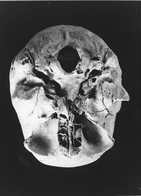 1.10  Skull 10, BC4, St4, female aet 25-30, osteoarthritis of jaw joints.